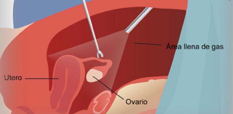 Laparoscopia pelvica para extirpar el quiste o el ovario